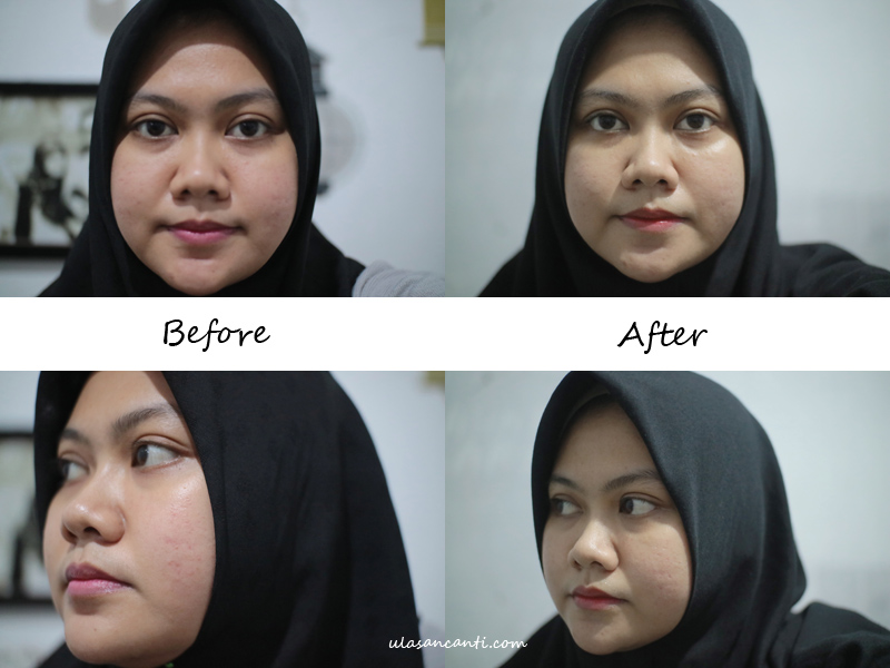 before after pemakaian avoskin phte