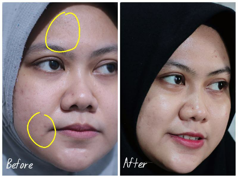 Review Scarlett Acne Serum dan Scarlett Brightly Ever After Serum